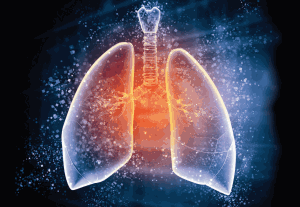 The Lung Institute: Screening for Disease and Cancer